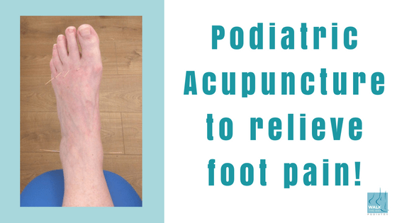Podiatric Acupuncture to relieve foot pain