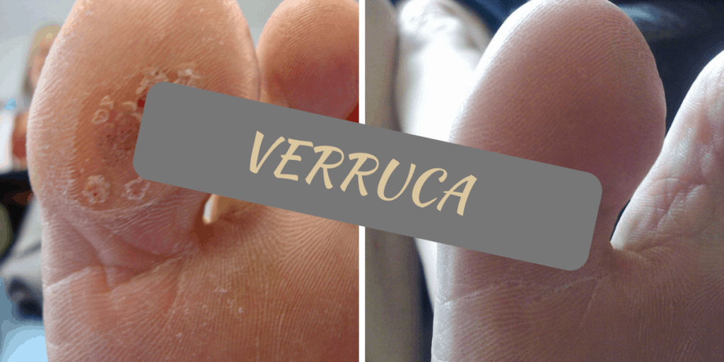 The what, where and why of verrucas - Walk This Way Podiatry